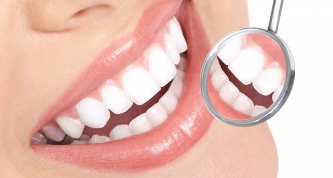 Implantul dentar si alegerea unei vieti sanatoase
