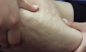Despre celulita si tratamentul ei