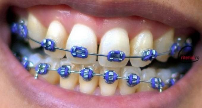 Sfaturi pentru cei care poarta aparat dentar fix