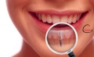 Ce este implantul dentar si care sunt beneficiile acestuia?
