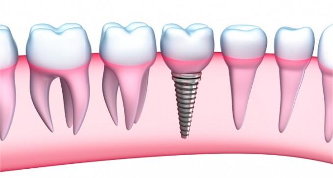 De ce este un implant dentar Fast&Fixed solutia potrivita pentru tine?