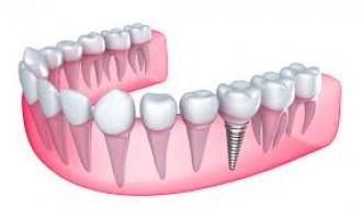 De ce sa apelezi la un tratament cu implant dentar?