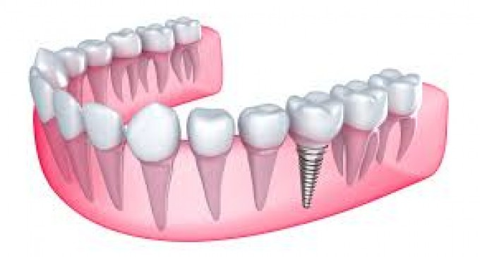 Clinicile Dr. Leahu: implant dentar One Day sau Fast&Fixed?