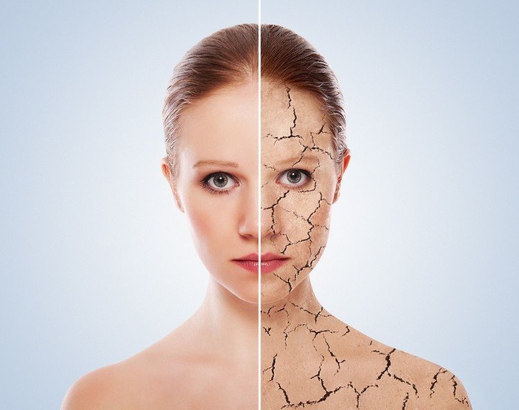 deshidratarea pielii