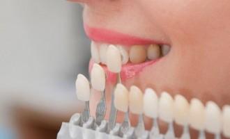Specialistii explica: Ce sunt fatetele dentare si de ce sa apelam la ele