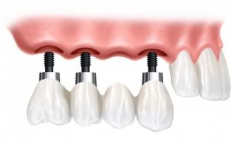 De ce sa apelezi la Clinicile Dr. Leahu pentru un tratament cu implant dentar