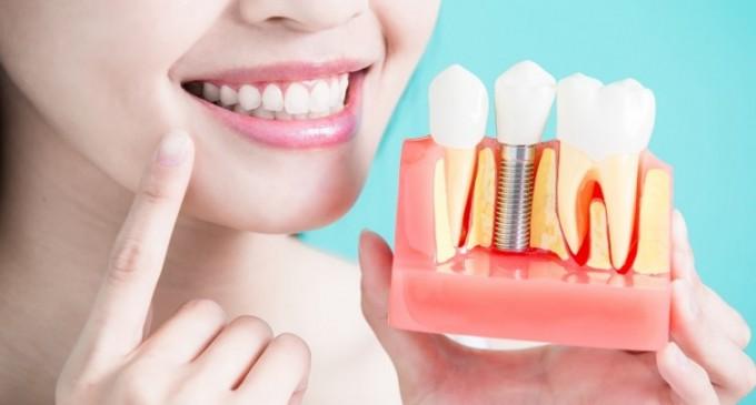 Cum ne poate ajuta implantul dentar să avem un zâmbet impecabil şi o viaţă normală?