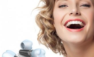 7 tipuri de implant dentar recomandate de medicii implantologi din Romania
