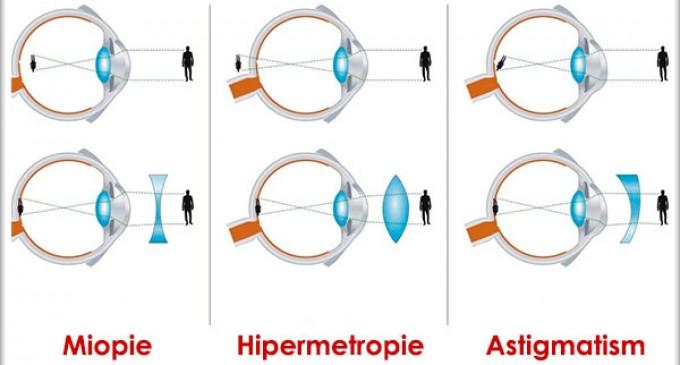 Tipuri de lentile de contact utilizate in corectarea miopiei si hipermetropiei