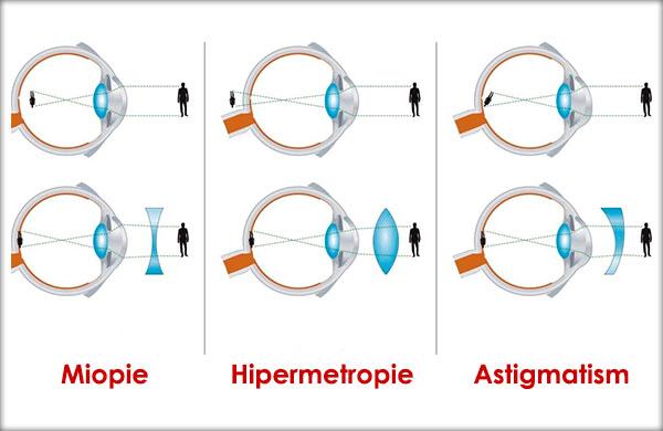 hipermetropie latentă la adulți