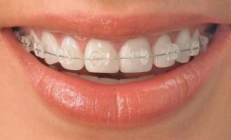 Cum să-ți menți dinții albi dacă porți aparat dentar