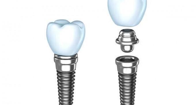 Lucruri interesante pe care trebuie sa le stii despre implantul dentar