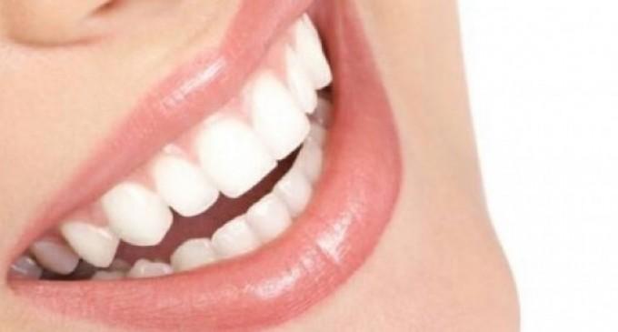 La ce ne ajuta fatetele dentare