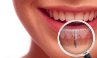 Avantajele oferite de un implant dentar corespunzator