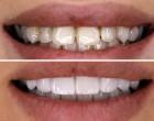 Fatetele dentare o alternativa foarte buna