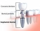 Soluția salvatoare în cazul dințiilor deteriorați